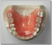 部分入れ歯ノンスクラブ