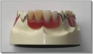 プラスチック義歯横